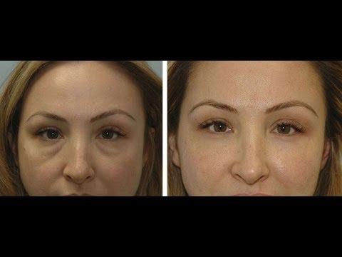 10 Tipps zur Befreiung von Schwellungen unter den Augen oder Augentaschen